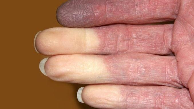 white fingers